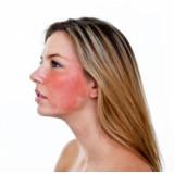 Аллергичная кожа