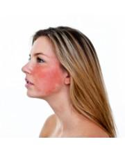 Аллергичная кожа (1)