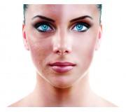 Реабилитация кожи до и после лазерной шлифовки с косметикой МИРРА