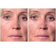 Крем для лица от пигментных пятен в зрелом возрасте- помогают ли, мифы и правда